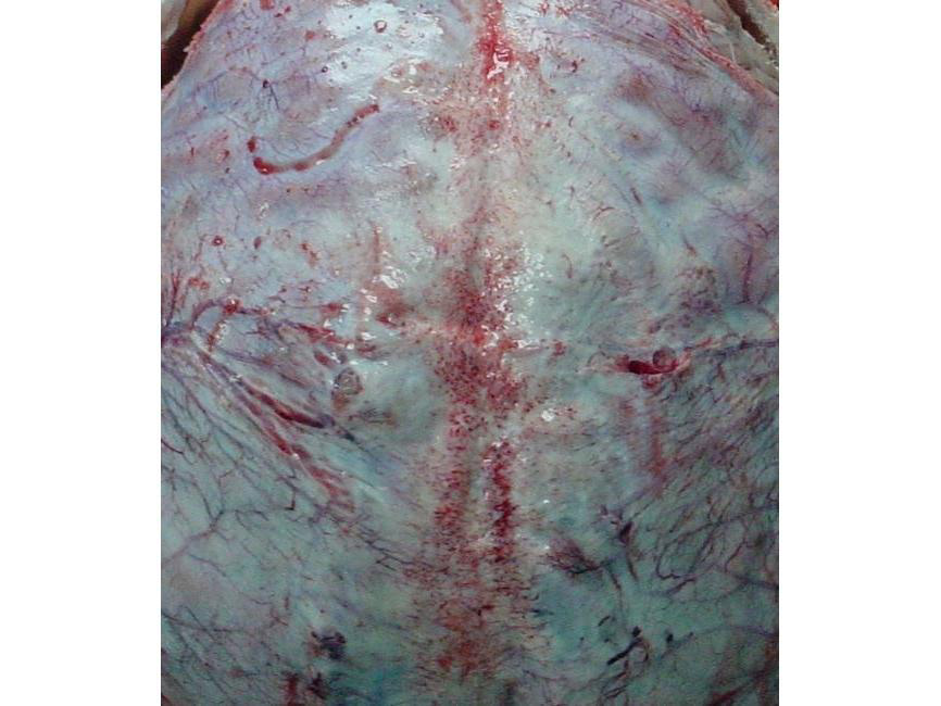 arteriovenoz_malformasyonlar_3